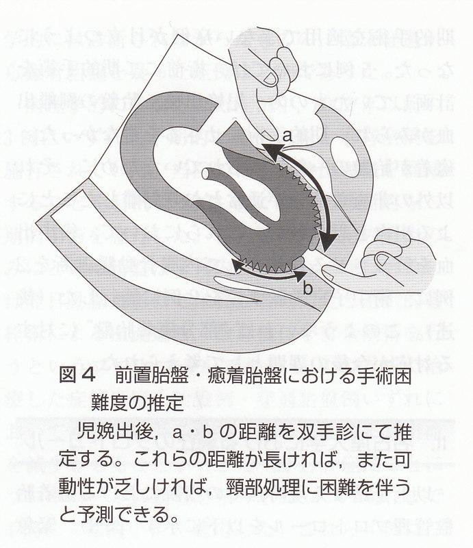200862215